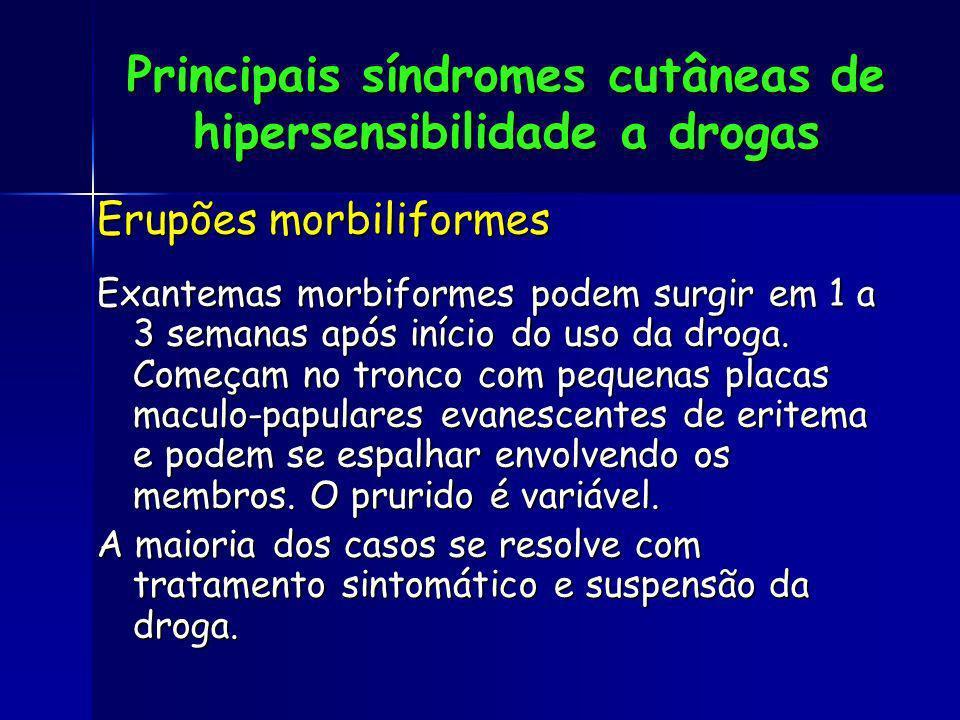 Principais síndromes cutâneas de hipersensibilidade a drogas Erupões morbiliformes Exantemas morbiformes podem surgir em 1 a 3 semanas após início do