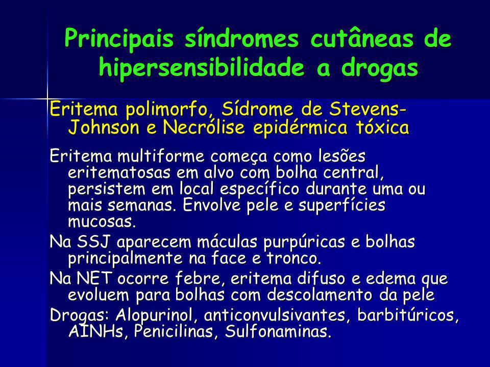 Eritema polimorfo, Sídrome de Stevens- Johnson e Necrólise epidérmica tóxica Eritema multiforme começa como lesões eritematosas em alvo com bolha cent