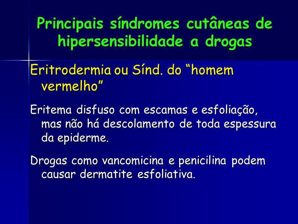 Eritrodermia ou Sínd. do homem vermelho Eritema disfuso com escamas e esfoliação, mas não há descolamento de toda espessura da epiderme. Drogas como v