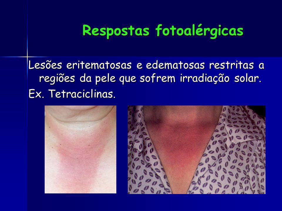 Respostas fotoalérgicas Lesões eritematosas e edematosas restritas a regiões da pele que sofrem irradiação solar. Ex. Tetraciclinas.