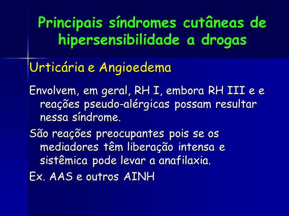Principais síndromes cutâneas de hipersensibilidade a drogas Urticária e Angioedema Envolvem, em geral, RH I, embora RH III e e reações pseudo-alérgic