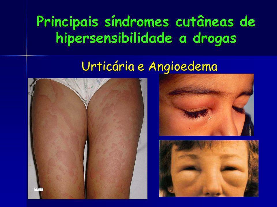 Principais síndromes cutâneas de hipersensibilidade a drogas Urticária e Angioedema