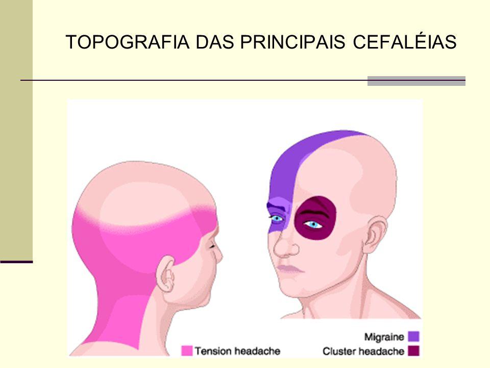 TOPOGRAFIA DAS PRINCIPAIS CEFALÉIAS