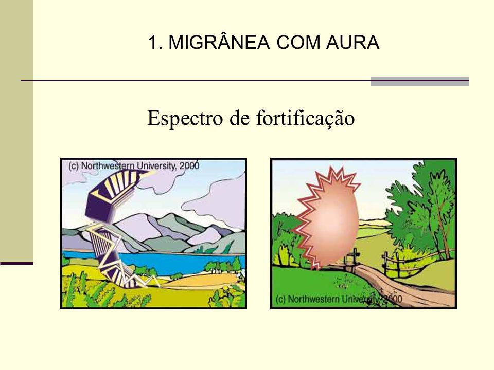 1. MIGRÂNEA COM AURA Espectro de fortificação