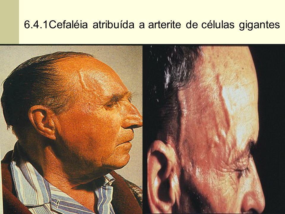 6.4.1Cefaléia atribuída a arterite de células gigantes