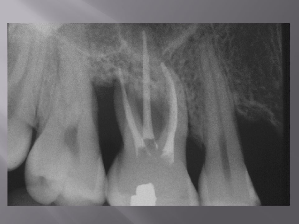 CARRANZA, F.A., NEWMAN, M.G.Periodontia clínica. 8.