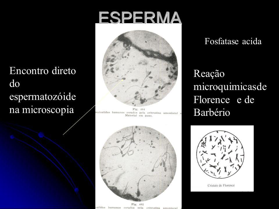 Encontro direto do espermatozóide na microscopia Fosfatase acidaESPERMA Reação microquimicasde Florence e de Barbério