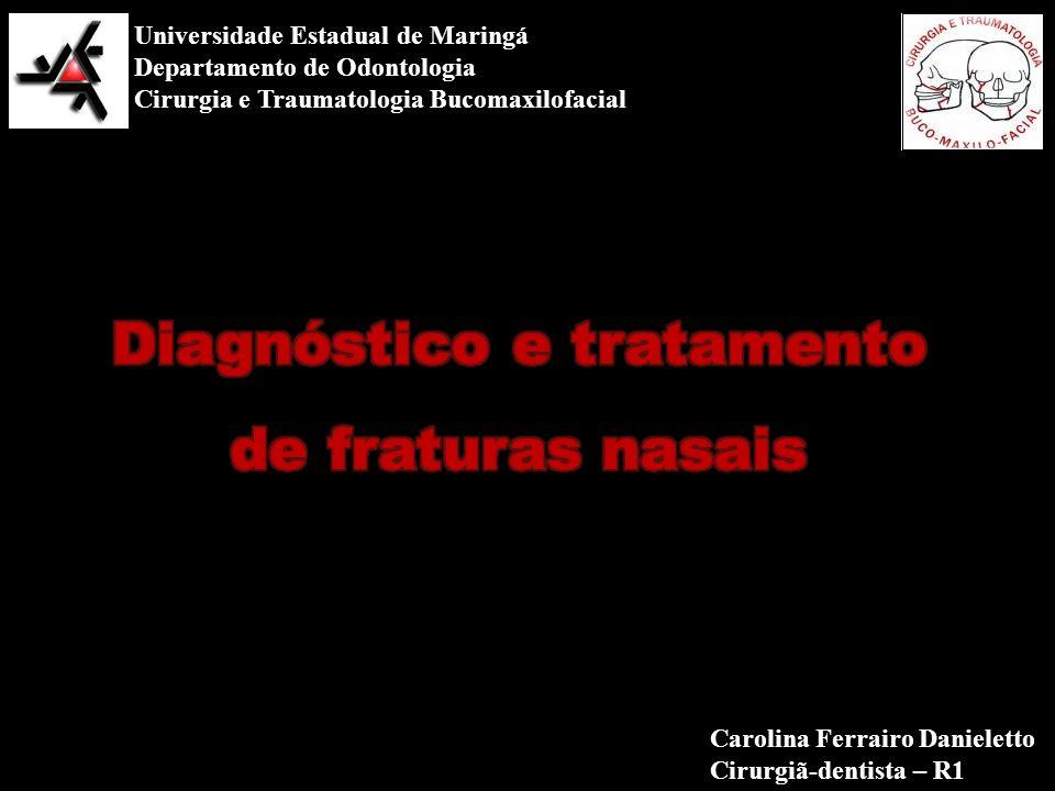 Universidade Estadual de Maringá Departamento de Odontologia Cirurgia e Traumatologia Bucomaxilofacial Carolina Ferrairo Danieletto Cirurgiã-dentista