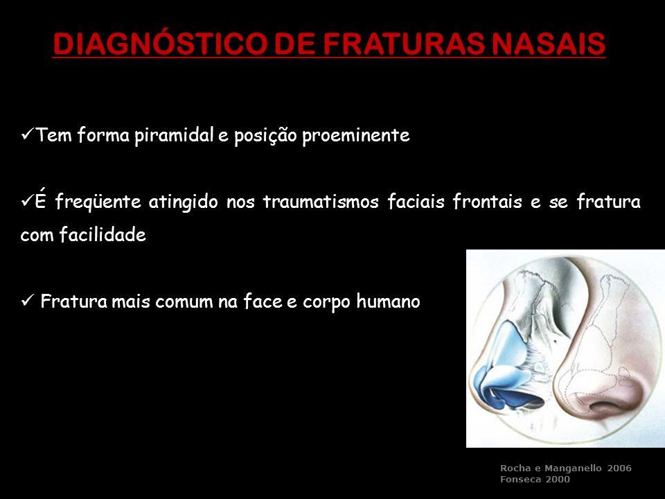 Tem forma piramidal e posição proeminente É freqüente atingido nos traumatismos faciais frontais e se fratura com facilidade Fratura mais comum na fac