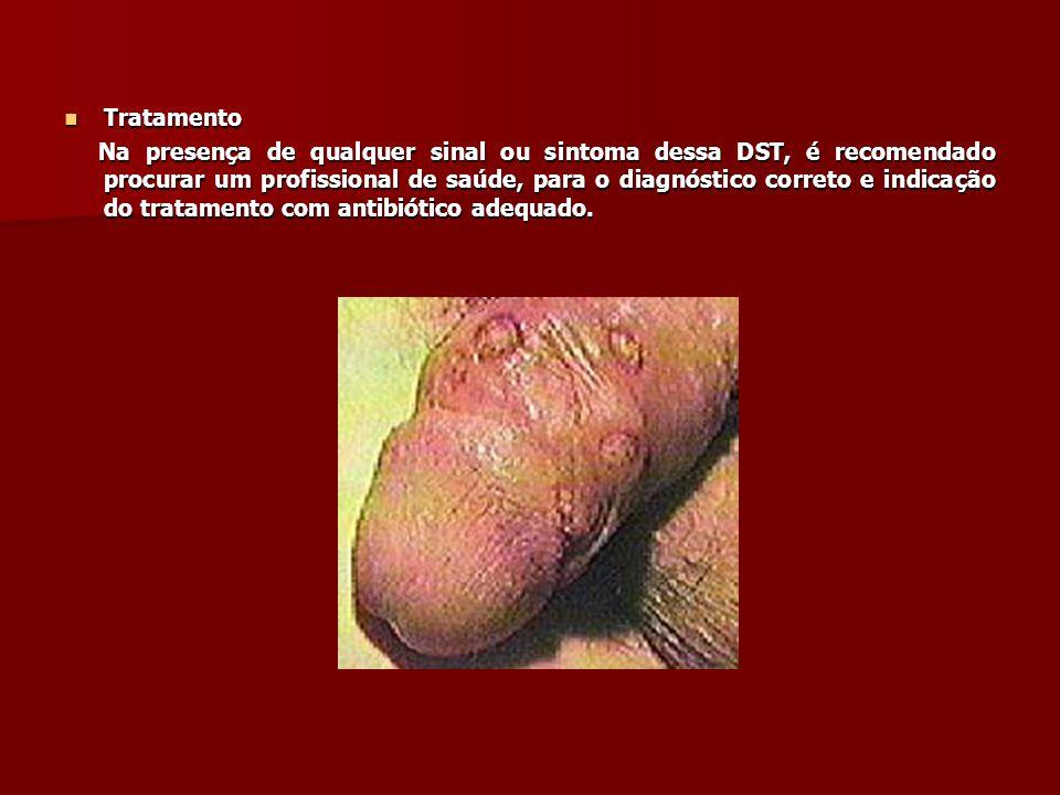 Hepatite E De ocorrência rara no Brasil e comum na Ásia e África, a hepatite do tipo E é uma doença infecciosa viral causada pelo vírus VHE.