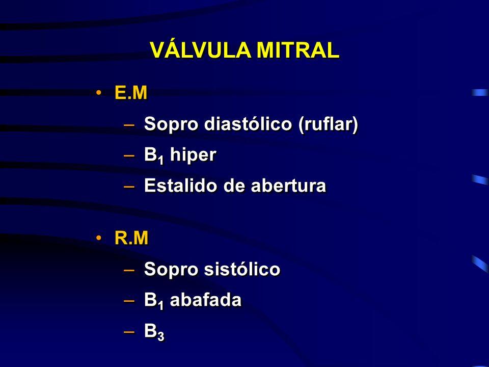 E.M –Sopro diastólico (ruflar) –B 1 hiper –Estalido de abertura R.M –Sopro sistólico –B 1 abafada –B 3 E.M –Sopro diastólico (ruflar) –B 1 hiper –Esta