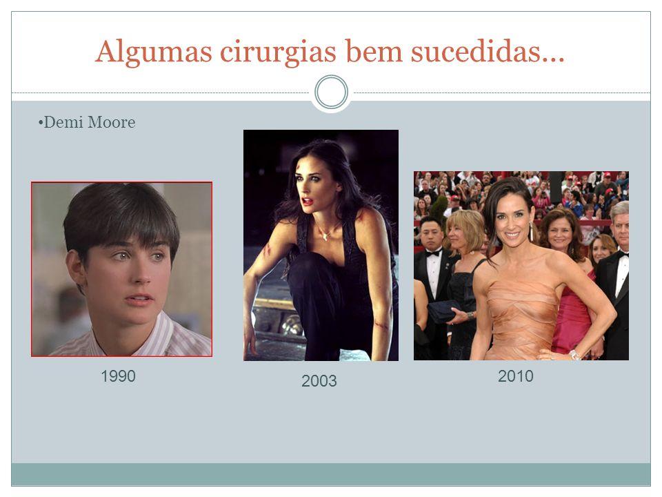 Algumas cirurgias bem sucedidas... Demi Moore 1990 2003 2010