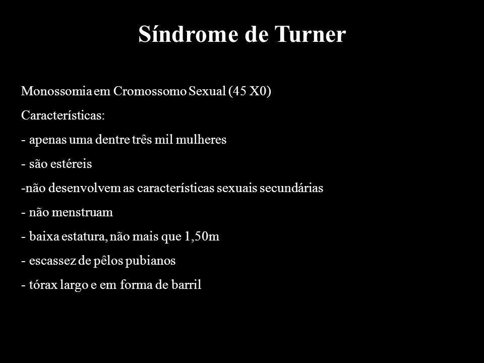 Síndrome de Turner Monossomia em Cromossomo Sexual (45 X0) Características: - apenas uma dentre três mil mulheres - são estéreis -não desenvolvem as c