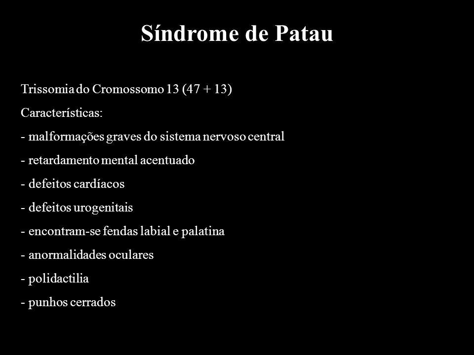 Síndrome de Patau Trissomia do Cromossomo 13 (47 + 13) Características: - malformações graves do sistema nervoso central - retardamento mental acentua
