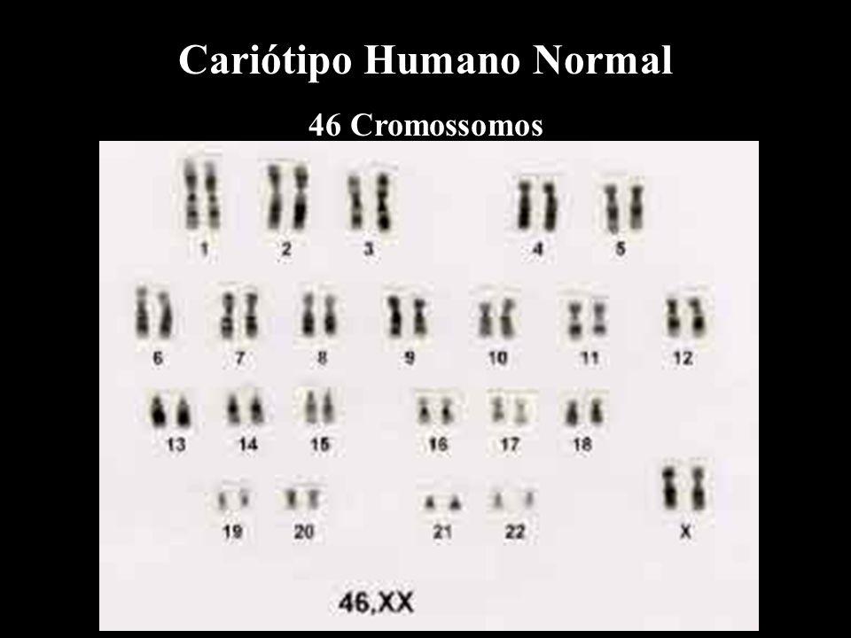 Cariótipo Humano Normal 46 Cromossomos