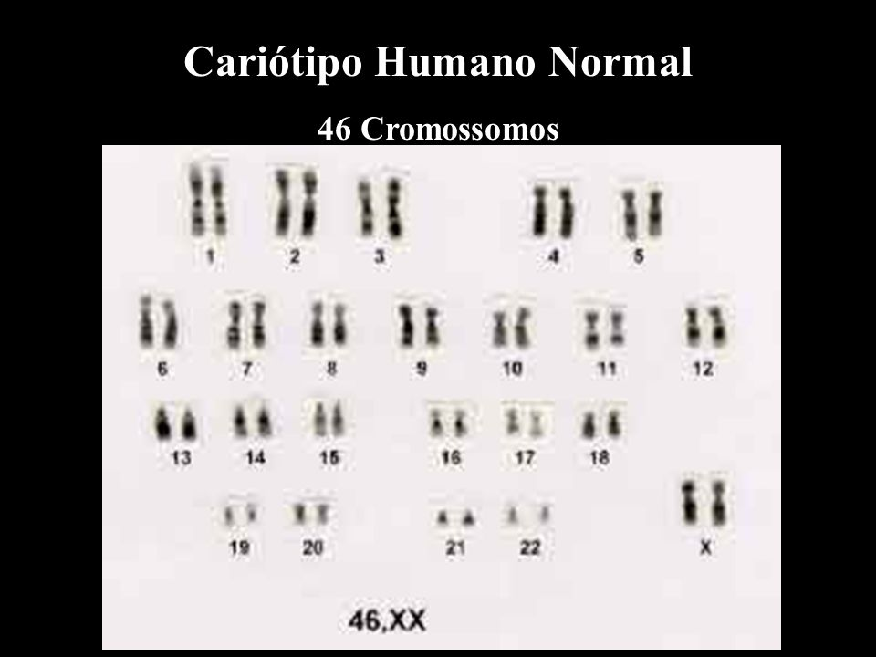 Aneuploidias ou Síndromes Genéticas