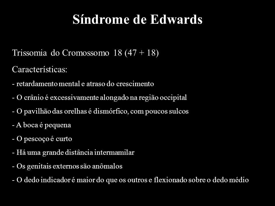 Síndrome de Edwards Trissomia do Cromossomo 18 (47 + 18) Características: - retardamento mental e atraso do crescimento - O crânio é excessivamente al
