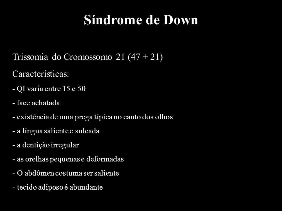 Síndrome de Down Trissomia do Cromossomo 21 (47 + 21) Características: - QI varia entre 15 e 50 - face achatada - existência de uma prega típica no ca