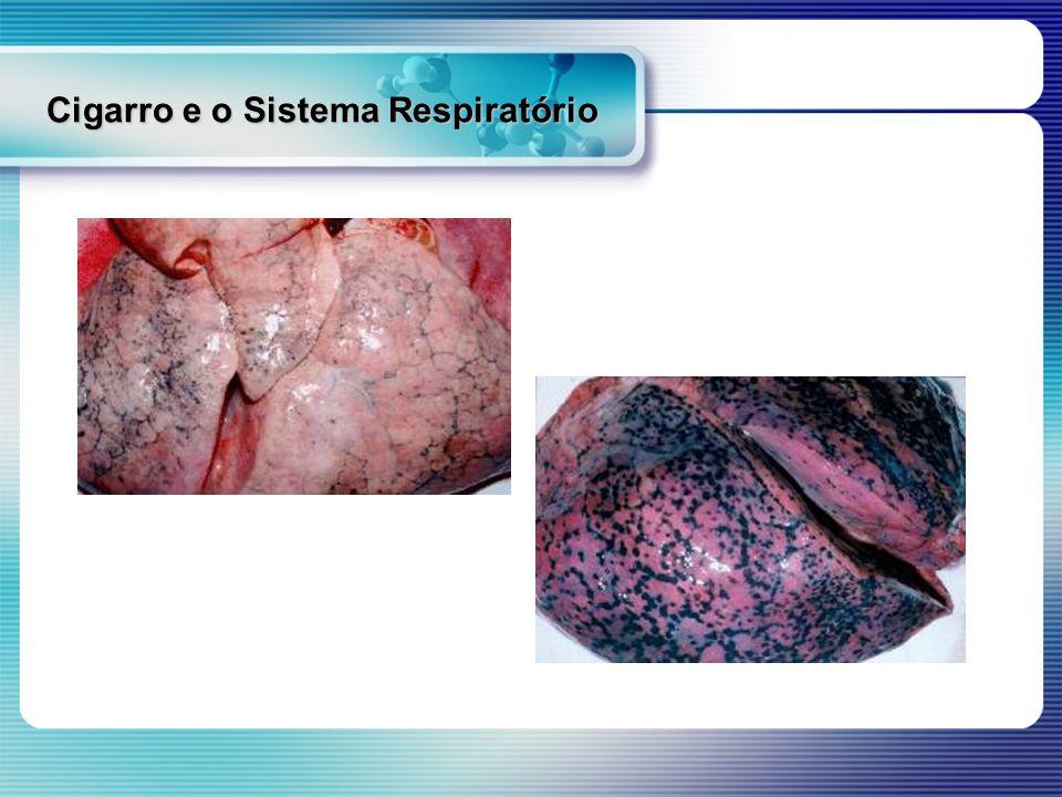 Cigarro e o Sistema Respiratório