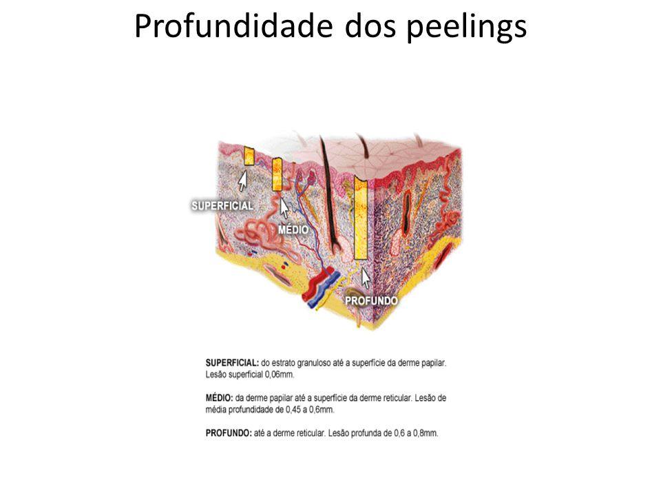 Profundidade dos peelings
