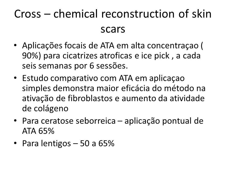 Cross – chemical reconstruction of skin scars Aplicações focais de ATA em alta concentraçao ( 90%) para cicatrizes atroficas e ice pick, a cada seis semanas por 6 sessões.
