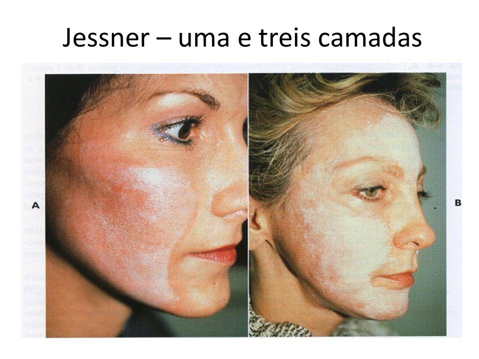 . Jessner – uma e treis camadas