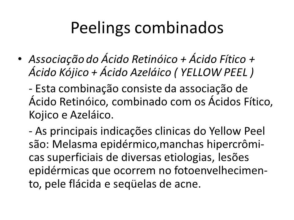 Peelings combinados Associação do Ácido Retinóico + Ácido Fítico + Ácido Kójico + Ácido Azeláico ( YELLOW PEEL ) - Esta combinação consiste da associação de Ácido Retinóico, combinado com os Ácidos Fítico, Kojico e Azeláico.