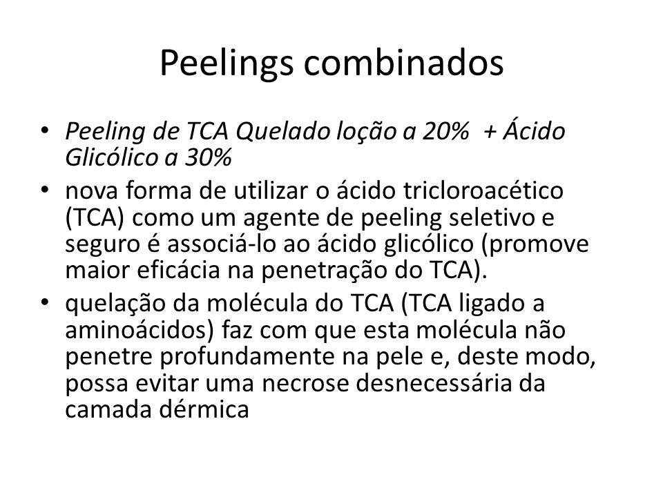 Peelings combinados Peeling de TCA Quelado loção a 20% + Ácido Glicólico a 30% nova forma de utilizar o ácido tricloroacético (TCA) como um agente de peeling seletivo e seguro é associá-lo ao ácido glicólico (promove maior eficácia na penetração do TCA).