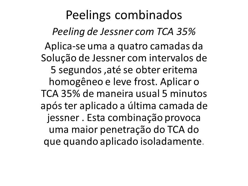 Peelings combinados Peeling de Jessner com TCA 35% Aplica-se uma a quatro camadas da Solução de Jessner com intervalos de 5 segundos,até se obter eritema homogêneo e leve frost.