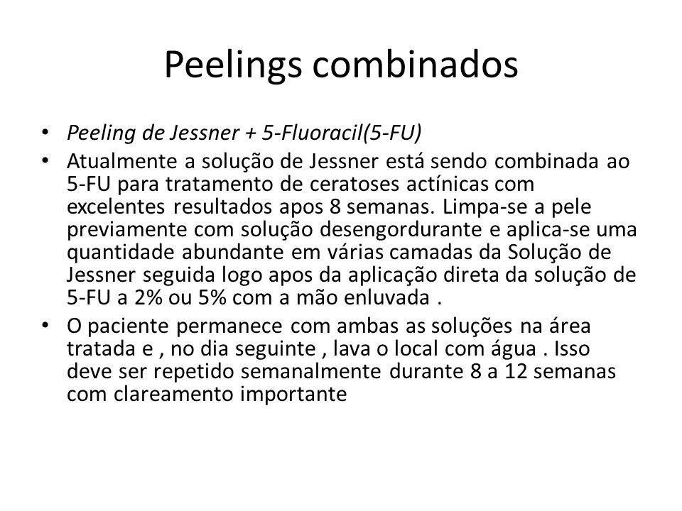 Peelings combinados Peeling de Jessner + 5-Fluoracil(5-FU) Atualmente a solução de Jessner está sendo combinada ao 5-FU para tratamento de ceratoses actínicas com excelentes resultados apos 8 semanas.
