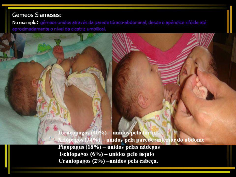 Gêmeos: depende da divisão completa do embriobasto em dois; divisão incompleta: gêmeos siameses Gêmeos monozigóticos ou idênticos (30% dos tipos de ge