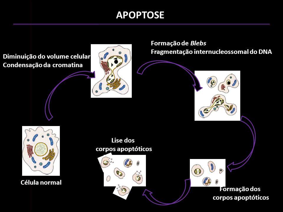 APOPTOSE Célula normal Diminuição do volume celular Condensação da cromatina Formação de Blebs Fragmentação internucleossomal do DNA Formação dos corp