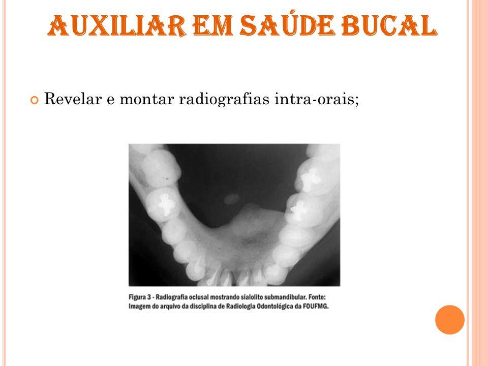 AUXILIAR EM SAÚDE BUCAL Revelar e montar radiografias intra-orais;