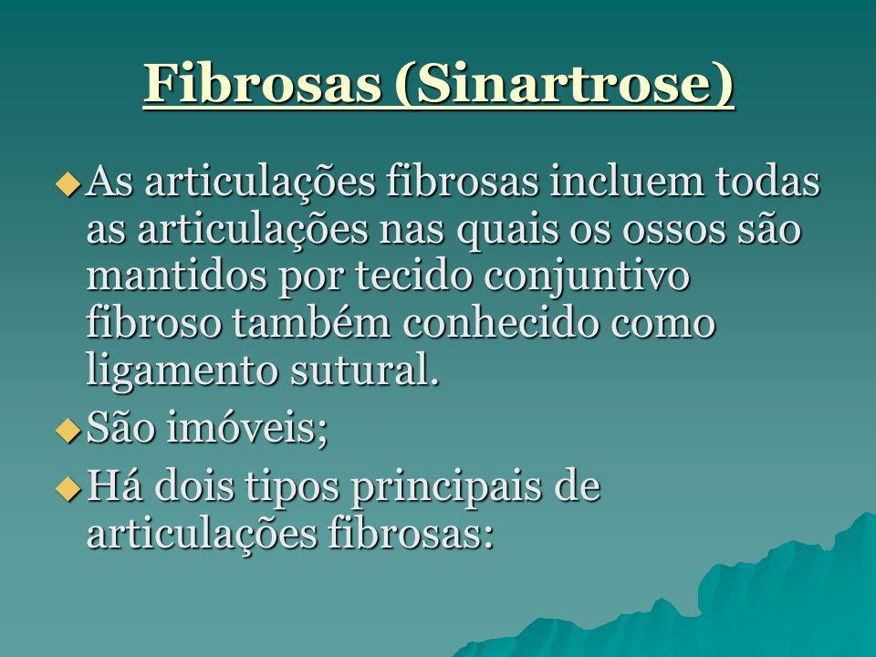 Fibrosas (Sinartrose)  As articulações fibrosas incluem todas as articulações nas quais os ossos são mantidos por tecido conjuntivo fibroso também co