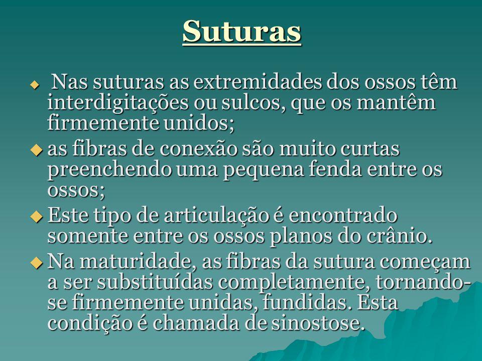 Suturas  Nas suturas as extremidades dos ossos têm interdigitações ou sulcos, que os mantêm firmemente unidos;  as fibras de conexão são muito curta