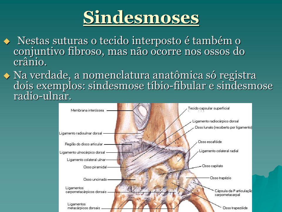 Sindesmoses  Nestas suturas o tecido interposto é também o conjuntivo fibroso, mas não ocorre nos ossos do crânio.  Na verdade, a nomenclatura anatô