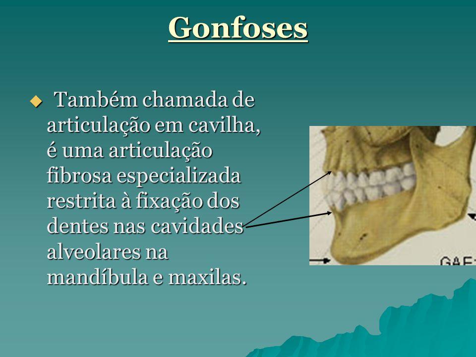 Gonfoses  Também chamada de articulação em cavilha, é uma articulação fibrosa especializada restrita à fixação dos dentes nas cavidades alveolares na