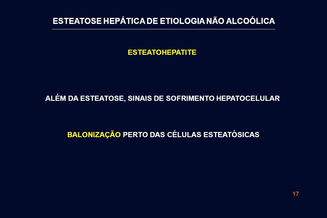 17 ESTEATOHEPATITE BALONIZAÇÃO PERTO DAS CÉLULAS ESTEATÓSICAS ALÉM DA ESTEATOSE, SINAIS DE SOFRIMENTO HEPATOCELULAR ESTEATOSE HEPÁTICA DE ETIOLOGIA NÃO ALCOÓLICA