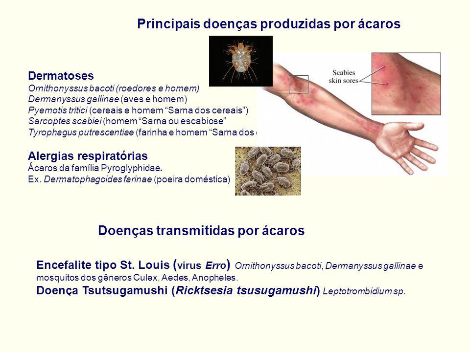 Principais doenças produzidas por ácaros Dermatoses Ornithonyssus bacoti (roedores e homem) Dermanyssus gallinae (aves e homem) Pyemotis tritici (cereais e homem Sarna dos cereais ) Sarcoptes scabiei (homem Sarna ou escabiose Tyrophagus putrescentiae (farinha e homem Sarna dos especieiros) Alergias respiratórias Ácaros da família Pyroglyphidae.