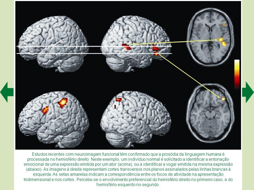 Estudos recentes com neuroimagem funcional têm confirmado que a prosódia da linguagem humana é processada no hemisfério direito.