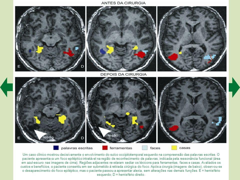 Um caso clínico mostrou decisivamente o envolvimento do sulco occipitotemporal esquerdo na compreensão das palavras escritas.