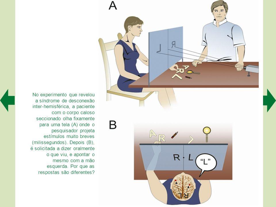 No experimento que revelou a síndrome de desconexão inter-hemisférica, a paciente com o corpo caloso seccionado olha fixamente para uma tela (A) onde o pesquisador projeta estímulos muito breves (milissegundos).