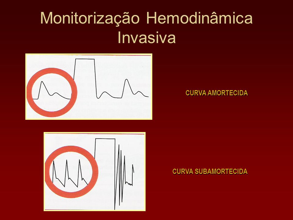 Monitorização Hemodinâmica Invasiva CURVA SUBAMORTECIDA CURVA AMORTECIDA