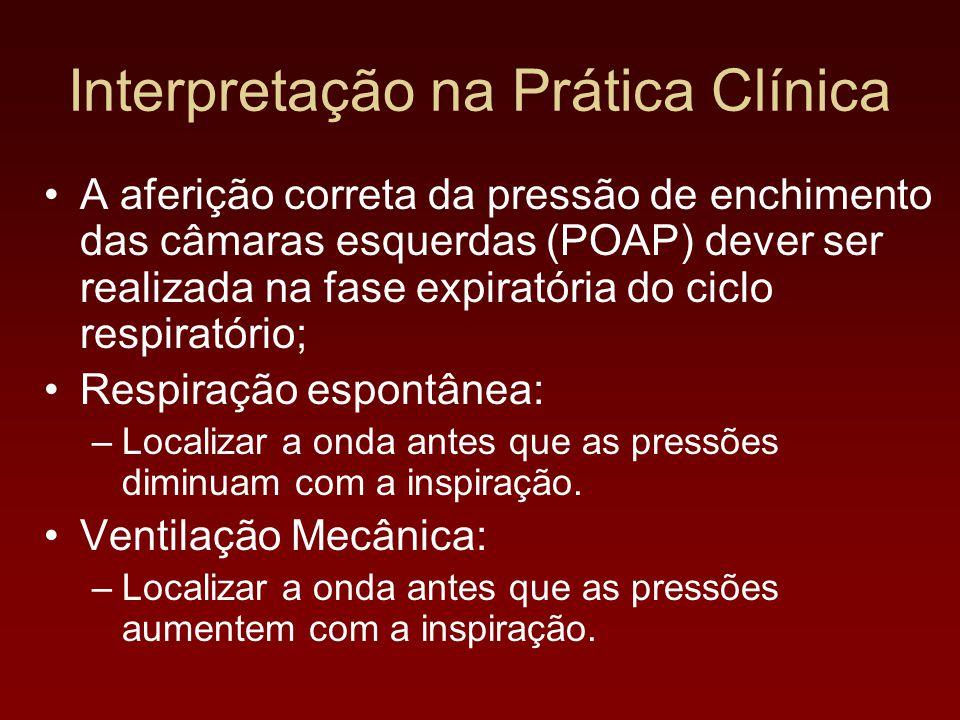 Interpretação na Prática Clínica A aferição correta da pressão de enchimento das câmaras esquerdas (POAP) dever ser realizada na fase expiratória do c