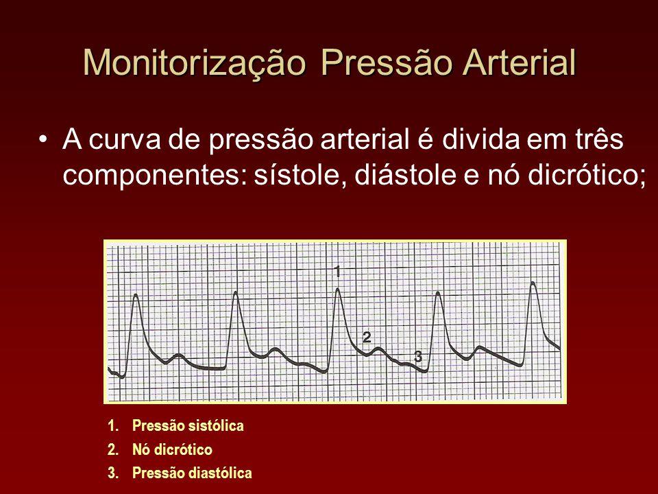 A curva de pressão arterial é divida em três componentes: sístole, diástole e nó dicrótico; 1.Pressão sistólica 2.Nó dicrótico 3.Pressão diastólica Mo