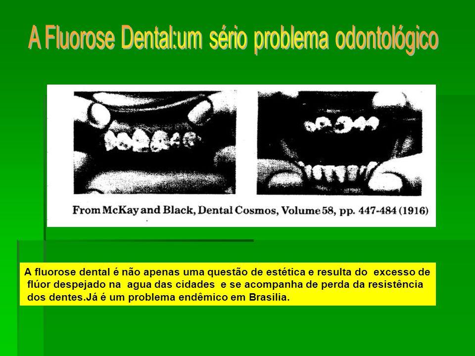 A fluorose dental é não apenas uma questão de estética e resulta do excesso de flúor despejado na agua das cidades e se acompanha de perda da resistência dos dentes.Já é um problema endêmico em Brasilia.