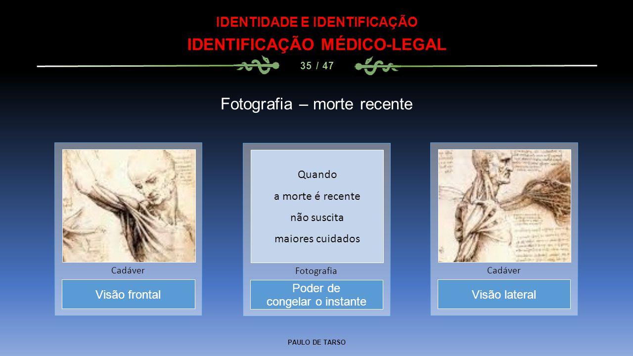 PAULO DE TARSO IDENTIDADE E IDENTIFICAÇÃO IDENTIFICAÇÃO MÉDICO-LEGAL 35 / 47 Fotografia – morte recente Poder de congelar o instante Fotografia Visão