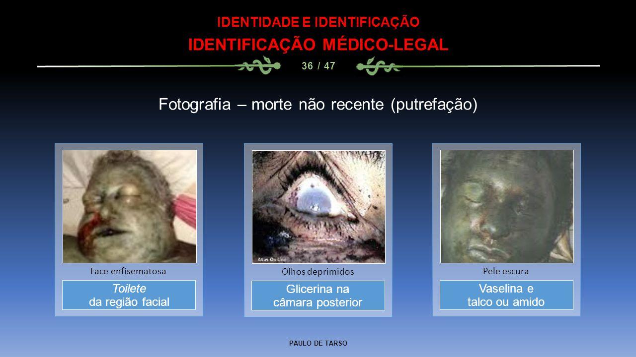 PAULO DE TARSO IDENTIDADE E IDENTIFICAÇÃO IDENTIFICAÇÃO MÉDICO-LEGAL 36 / 47 Fotografia – morte não recente (putrefação) Glicerina na câmara posterior