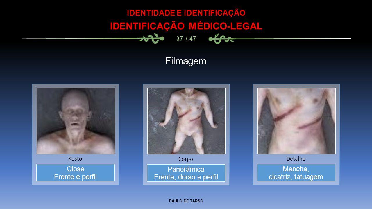 PAULO DE TARSO IDENTIDADE E IDENTIFICAÇÃO IDENTIFICAÇÃO MÉDICO-LEGAL 37 / 47 Filmagem Panorâmica Frente, dorso e perfil Corpo Close Frente e perfil Ro