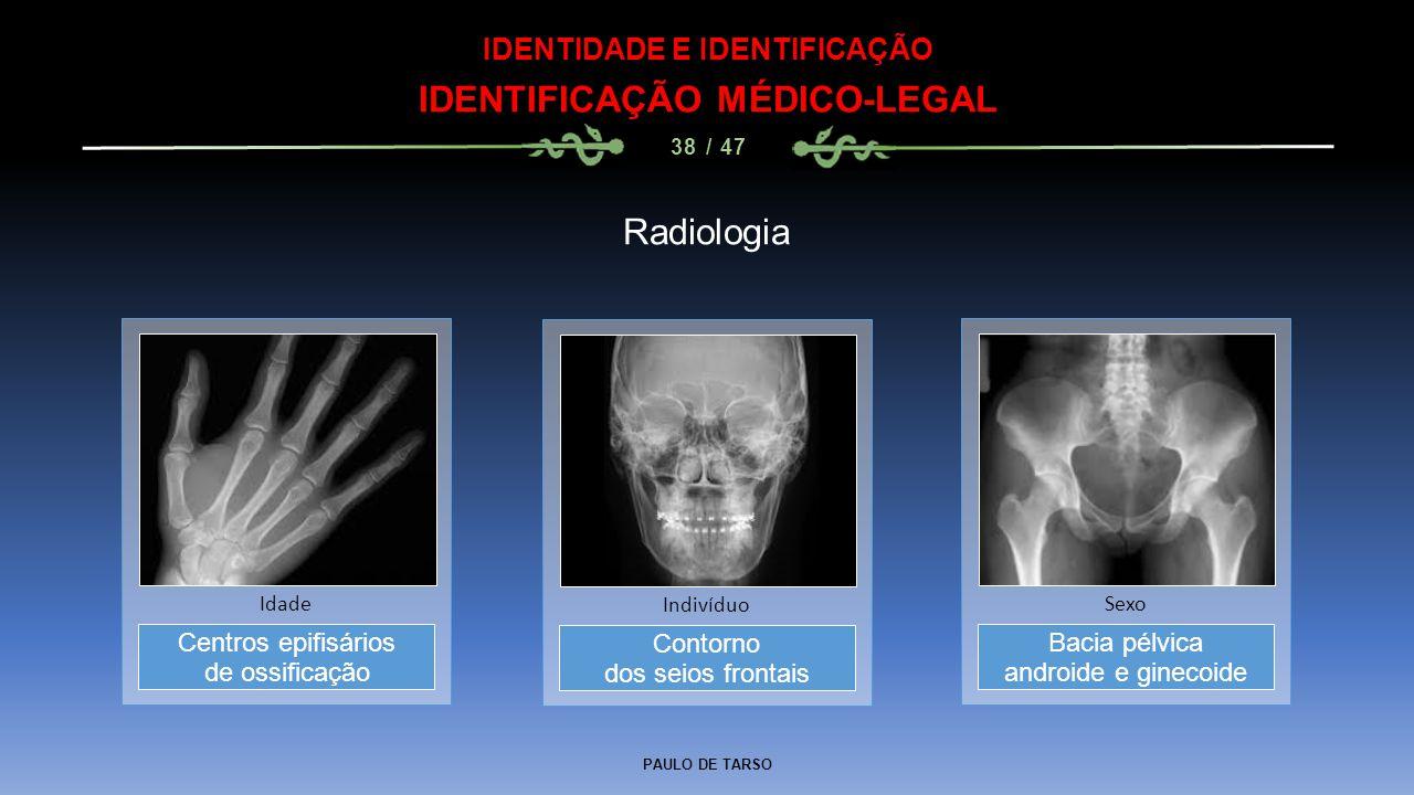 PAULO DE TARSO IDENTIDADE E IDENTIFICAÇÃO IDENTIFICAÇÃO MÉDICO-LEGAL 38 / 47 Radiologia Contorno dos seios frontais Indivíduo Centros epifisários de o